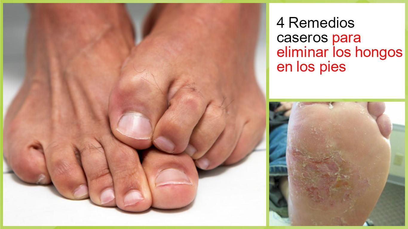 dedos de los pies titán